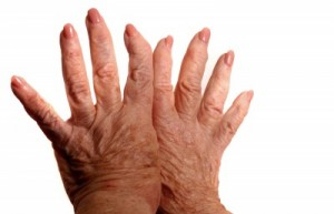 picture of hands with arthritis