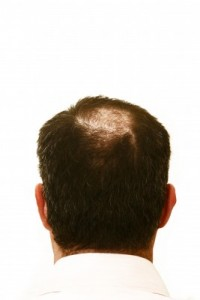 picture of hair loss
