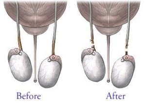 picture of img-vasectomy-before-after