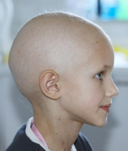 picture of profile of a caucasian child showing hair loss due to chemotherapy treatment for cancer