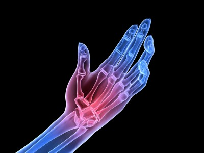 What foods and chemicals additives can cause arthritis pain?