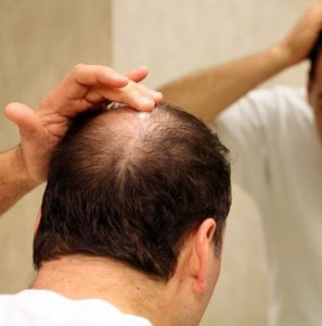 picture of man checking his hair loss