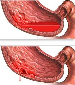 Tips to fix stomach ulcers