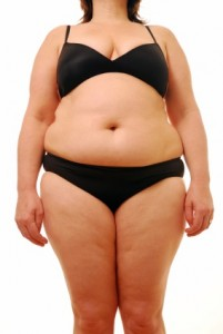 picture of overweight woman