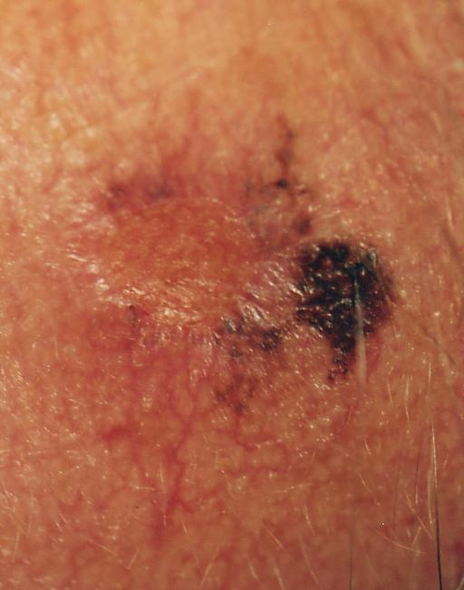 What you should know about skin cancer