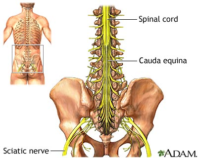 Sciatica is such a pain