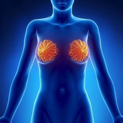 Causes and Treatment of Breast Cancer
