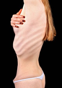 picture of woman with anorexia