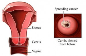 cervical cancer