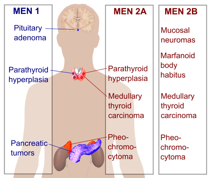Multiple Endocrine Neoplasia
