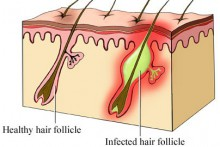 folliculitis-hair-