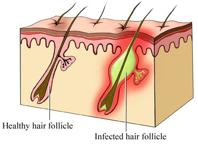 Infected Hair Follicle on Head, Scalp, Leg, Armpit, Breast ...