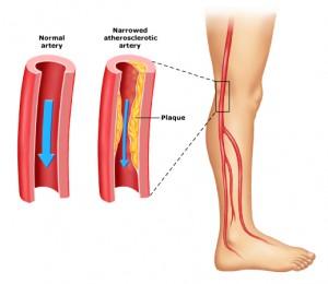 Florida-Heart-Group-peripheral_artery_disease_p