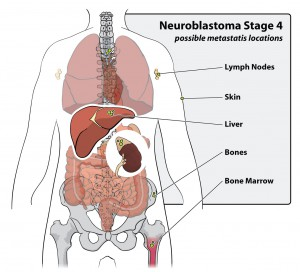 neuroblastoma-stage-4