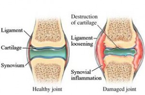 healthy joints graph