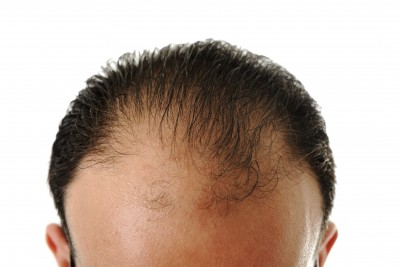 Is your hair thinning out on top or on the sides?  These tips may help