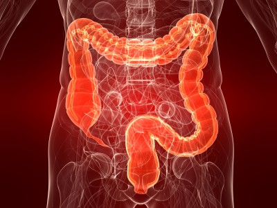 Keeping your colon constipation and cancer free