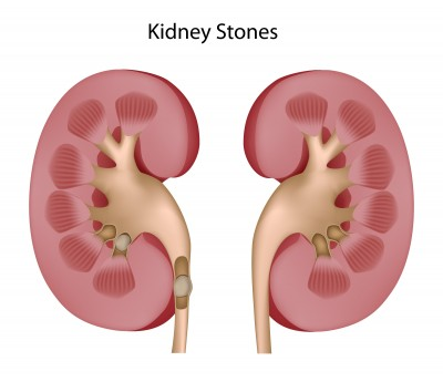 Kidney stones: who is at risk, signs you may have one and how to deal with it