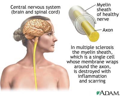 Alternative treatments for MS