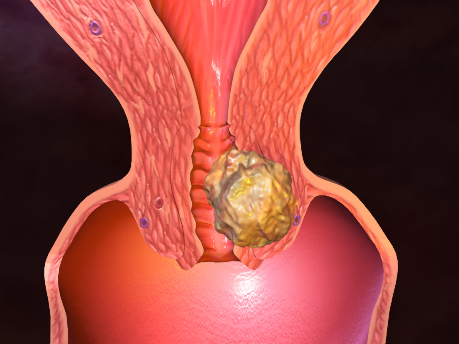 Endometrial Cancer, cancer of the uterus