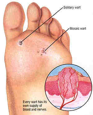 Where Do Warts Come From?